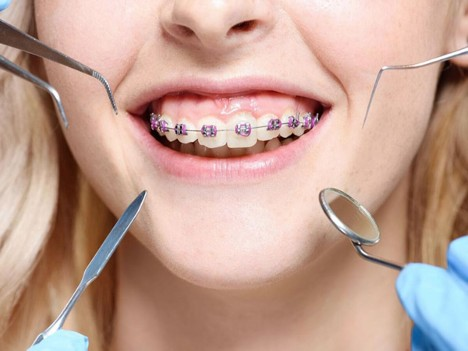 Types Of Orthodontic Issues And Their Treatments Available In Parramatta